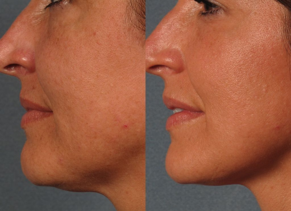 How Does Laser Treatment For Skin Tightening Work Em 233 Na Spa